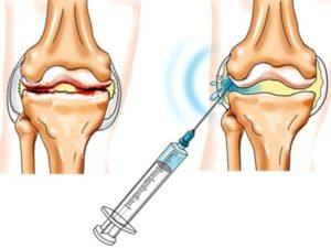 Советы по введения гиалуроновой кислоты при лечении артроза большого пальца ноги
