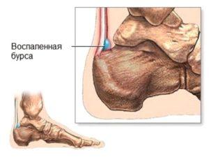 Голеностопный сустав пораженный бурситом