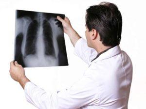 Проходите рентгенологическое исследование при грудной артроз