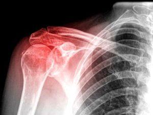 Снимок показывает повреждения плеча при посттравматическом артрозе