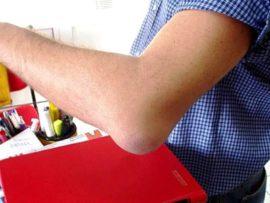 Советы о том что такое гнойный бурсит локтевого сустава