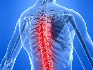 Советы о том что такое грудной артроз
