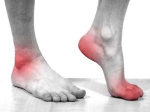 Советы о том как проявляется боль при артрозе ног