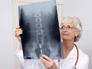Советы по лечению артроза позвоночника