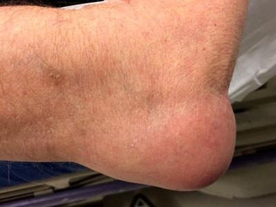 Применяемые антибиотики при гнойном бурсите сустава трещина чашечки коленного сустава