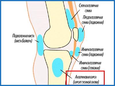 Заболевание коленого сустава гусинные лапки суставные мышцы