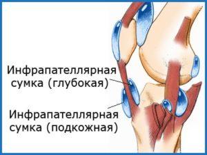 Место положение инфрапателлярного бурсита коленного сустава