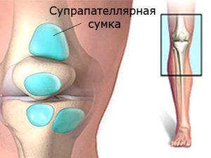 Местоположение супрапателлярной сумки бурсита коленного сустава