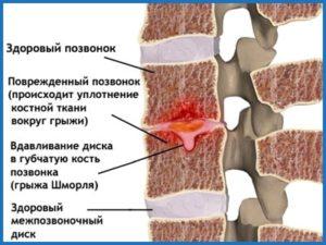 Лечение шейной грыжи шморля thumbnail