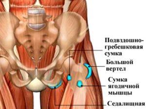Очаги воспаления бурсита тазобедренного сустава