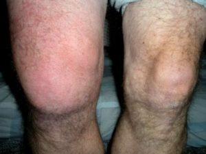 Развитие гнойного бурсита коленного сустава