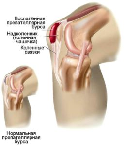 Развитие препателлярного бурсита коленного сустава