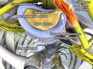 Схема развития грыжи в грудном отделе