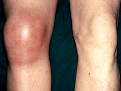Советы о том что такое гнойный бурсит коленного сустава