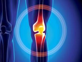 Советы о том что такое инфрапателлярный бурсит коленного сустава