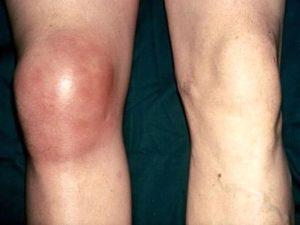 Советы о том что такое острый бурсит колена
