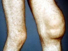 Советы о том что такое синовит коленного сустава