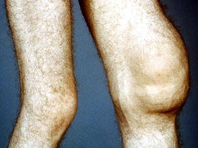 сколько стоит мрт коленного сустава в екатеринбурге