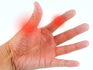 Советы о том как развиваются симптомы при бурсите пальцев рук