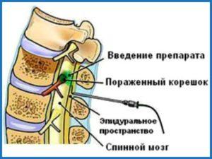 Советы о том как вводить препарат при грыжи позвоночника