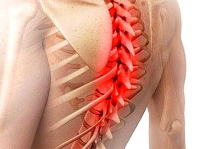 Советы по лечению грыжи в грудном отдела позвоночника