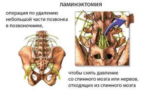 Ламинэктомия грыжи в поясничном отделе позвоночника