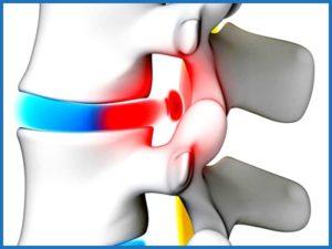 Симптомы межпозвоночной грыжа в крестцовом отделе