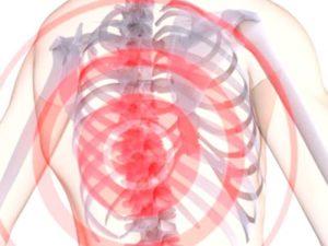 Советы о том что такое грыжа Шморля в грудном отдела