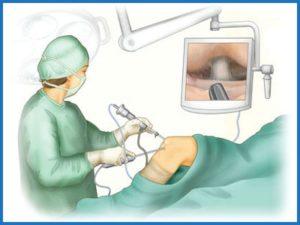 Артроскопический дебридмент при остеоартрозе