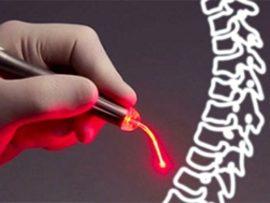 Советы по лечению межпозвоночной грыжи лазером