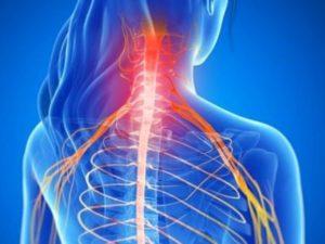 Советы по лечению шейного остеоартроза