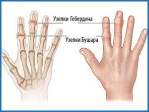 Советы по проявлению остеоартроза лучезапястного сустава