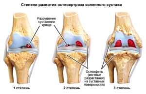 Степени развития остеоартроза коленного сустав