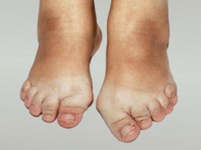 остеоартроза стопы