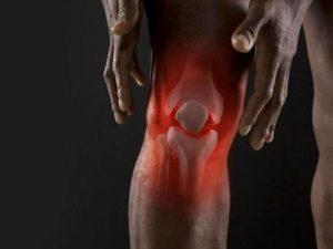 Боли в колене при артрите