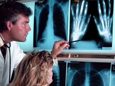 Степени развития артрита суставов