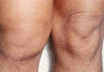Острый серозный артрит коленного сустава чем помочь коленому суставу