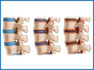 Развитие артрита в позвоночнике