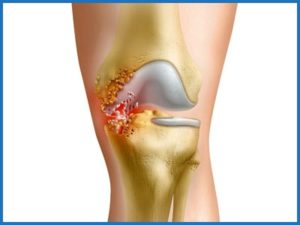 Развитие гнойного артрита коленного сустава