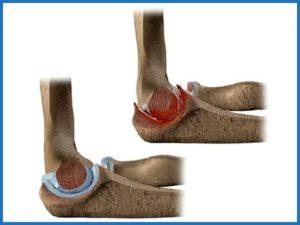 Советы о том что такое артрита локтевого сустава