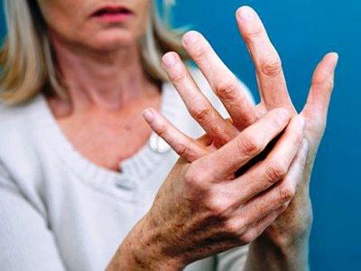 Признаки ревматоидного артрита у женщин
