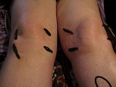 Гирудотерапии при артрозе коленного сустава