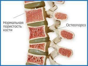 Osteoporoz-pozvonochnika