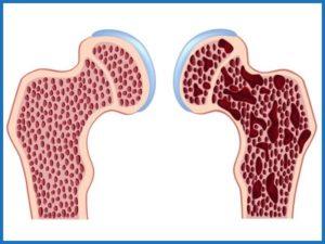 Остеопороз тазобедренного сустава 2