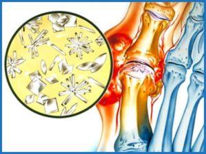 Что такое подагра и как ее лечить на ногах