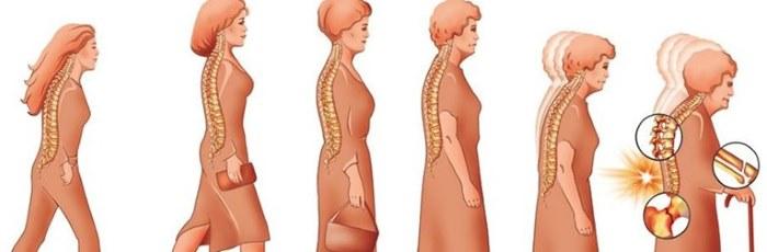 Рисунок показывает как развивается остеопороз с возрастом