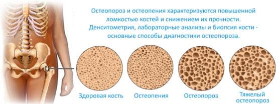Рисунок показывает как развивается остеопороз