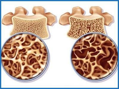 Рисунок показывает развитие остеопороза